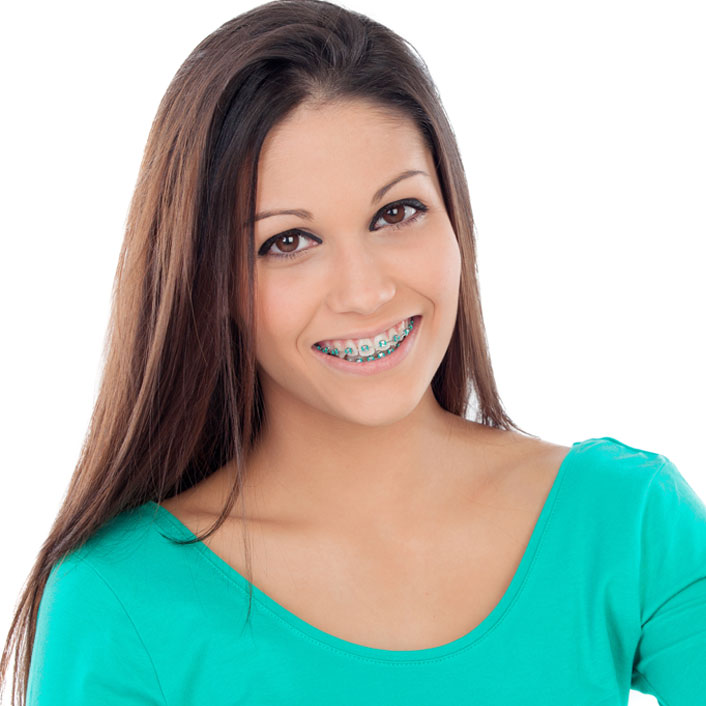 Fast Braces - Dental Services